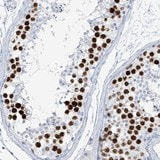 Immunohistochemistry (Formalin/PFA-fixed paraffin-embedded sections) - Anti-SGOL2 antibody (ab122258)