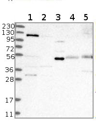 Western blot - Anti-CCDC39 antibody (ab122269)