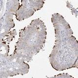 Immunohistochemistry (Formalin/PFA-fixed paraffin-embedded sections) - Anti-TRANK1 antibody (ab122283)