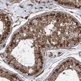 Immunohistochemistry (Formalin/PFA-fixed paraffin-embedded sections) - Anti-FAM114A2 antibody (ab122297)