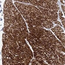 Immunohistochemistry (Formalin/PFA-fixed paraffin-embedded sections) - Anti-FAM155B antibody (ab122307)