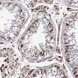 Immunohistochemistry (Formalin/PFA-fixed paraffin-embedded sections) - Anti-ALG1L antibody (ab122308)