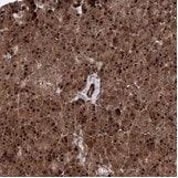 Immunohistochemistry (Formalin/PFA-fixed paraffin-embedded sections) - Anti-ANKAR antibody (ab122319)