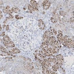 Immunohistochemistry (Formalin/PFA-fixed paraffin-embedded sections) - Anti-DNAH1 antibody (ab122366)
