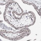 Immunohistochemistry (Formalin/PFA-fixed paraffin-embedded sections) - Anti-BOD1L antibody (ab122380)