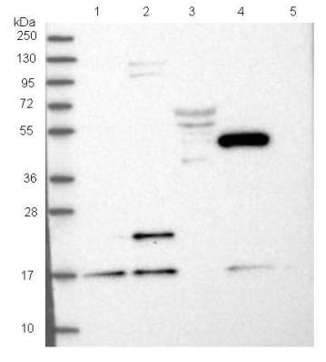 Western blot - Anti-NUDCD2 antibody (ab122384)