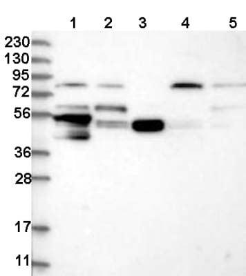 Western blot - Anti-PCYOX1L antibody (ab122389)
