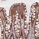 Immunohistochemistry (Formalin/PFA-fixed paraffin-embedded sections) - Anti-DNAH12 antibody (ab122394)