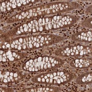 Immunohistochemistry (Formalin/PFA-fixed paraffin-embedded sections) - Anti-C10orf32 antibody (ab122402)