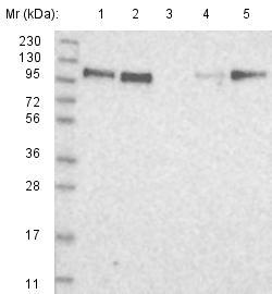 Western blot - Anti-FLJ20259 antibody (ab122405)