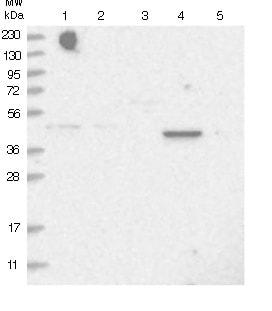 Western blot - Anti-C5ORF44 antibody (ab122413)