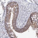 Immunohistochemistry (Formalin/PFA-fixed paraffin-embedded sections) - Anti-LRRC14B antibody (ab122435)