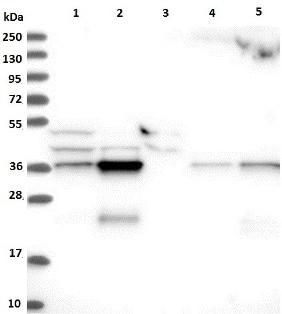 Western blot - Anti-CCDC75 antibody (ab122451)