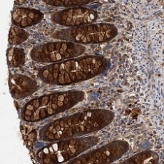 Immunohistochemistry (Formalin/PFA-fixed paraffin-embedded sections) - Anti-PATL1 antibody (ab122526)