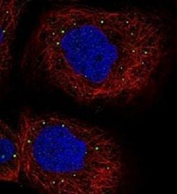 Immunocytochemistry/ Immunofluorescence - Anti-PATL1 antibody (ab122526)