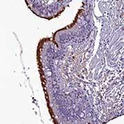 Immunohistochemistry (Formalin/PFA-fixed paraffin-embedded sections) - Anti-FAM149B1 antibody (ab122541)