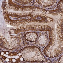 Immunohistochemistry (Formalin/PFA-fixed paraffin-embedded sections) - Anti-EHBP1L1 antibody (ab122557)