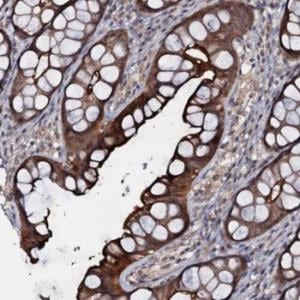 Immunohistochemistry (Formalin/PFA-fixed paraffin-embedded sections) - Anti-MANSC4 antibody (ab122569)