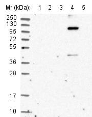 Western blot - Anti-KIAA1468 antibody (ab122576)