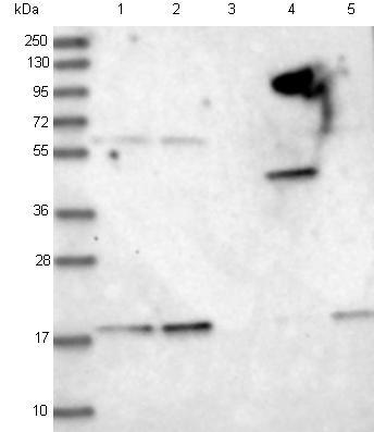 Western blot - Anti-MS4A4E antibody (ab122618)