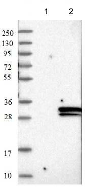 Western blot - Anti-FIBIN antibody (ab122621)