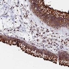 Immunohistochemistry (Formalin/PFA-fixed paraffin-embedded sections) - Anti-GRXCR1 antibody (ab122670)