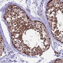 Immunohistochemistry (Formalin/PFA-fixed paraffin-embedded sections) - Anti-XKR7 antibody (ab122674)