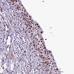 Immunohistochemistry (Formalin/PFA-fixed paraffin-embedded sections) - Anti-SAMD10 antibody (ab122682)