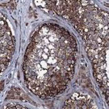 Immunohistochemistry (Formalin/PFA-fixed paraffin-embedded sections) - Anti-CR16 antibody (ab122695)