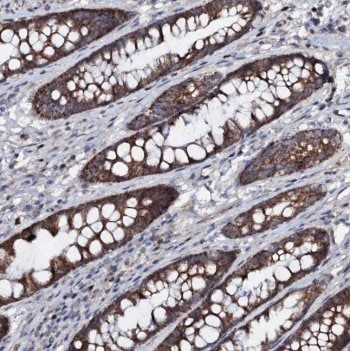 Immunohistochemistry (Formalin/PFA-fixed paraffin-embedded sections) - Anti-PPP1R3D antibody (ab122696)