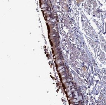 Immunohistochemistry (Formalin/PFA-fixed paraffin-embedded sections) - Anti-SPATA13 antibody (ab122701)