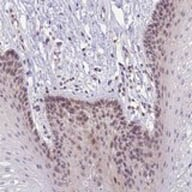 Immunohistochemistry (Formalin/PFA-fixed paraffin-embedded sections) - Anti-CRAMP1L antibody (ab122741)