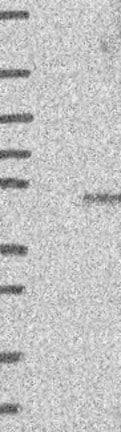 Western blot - Anti-FUZ antibody (ab122742)