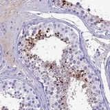 Immunohistochemistry (Formalin/PFA-fixed paraffin-embedded sections) - Anti-SPACA4 antibody (ab122758)