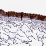 Immunohistochemistry (Formalin/PFA-fixed paraffin-embedded sections) - Anti-IGLON5 antibody (ab122763)