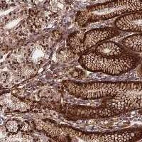 Immunohistochemistry (Formalin/PFA-fixed paraffin-embedded sections) - Anti-C20orf151 antibody (ab122804)