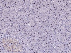 Immunohistochemistry (Formalin/PFA-fixed paraffin-embedded sections) - Anti-C3orf26 antibody (ab122820)