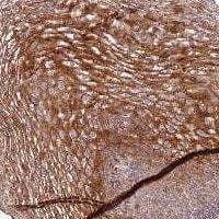 Immunohistochemistry (Formalin/PFA-fixed paraffin-embedded sections) - Anti-DEFB125 antibody (ab122829)