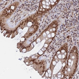 Immunohistochemistry (Formalin/PFA-fixed paraffin-embedded sections) - Anti-CCDC85A antibody (ab122831)