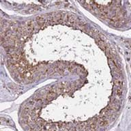 Immunohistochemistry (Formalin/PFA-fixed paraffin-embedded sections) - Anti-FAM70B antibody (ab122849)