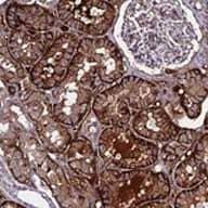 Immunohistochemistry (Formalin/PFA-fixed paraffin-embedded sections) - Anti-C19orf60 antibody (ab122850)