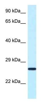 Western blot - Anti-NUDT16 antibody (ab122947)