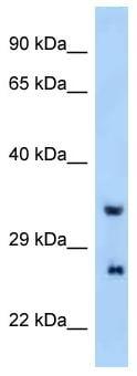 Western blot - Anti-PRRG4 antibody (ab122953)