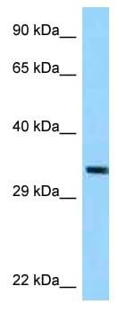 Western blot - Anti-TRUB1 antibody (ab123025)