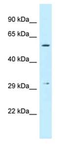 Western blot - Anti-CRISPLD1 antibody (ab123039)