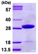 SDS-PAGE - TPK1 protein (His tag) (ab123150)