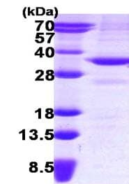 SDS-PAGE - BDH1 protein (ab123179)