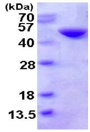 SDS-PAGE - Cystathionase protein (His tag) (ab123201)