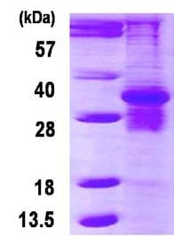 SDS-PAGE - Proteasome 20S beta 7 protein (ab123208)