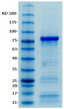 SDS-PAGE - CARS protein (His tag) (ab123218)
